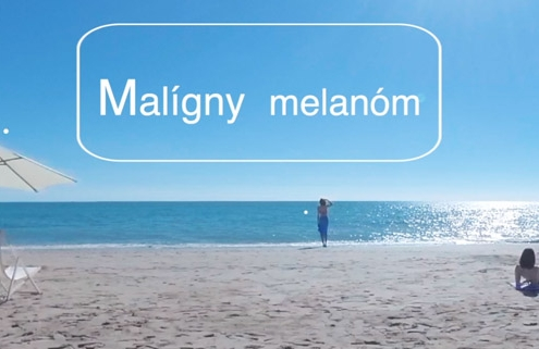 Opalovanie a melanom